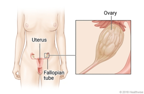 Location of uterus, ovaries, and fallopian tubes in lower belly, with close-up of ovary
