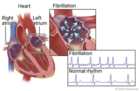 Right and left atria of heart with details showing fibrillation in an atrium, and EKG patterns of fibrillation and normal rhythm.