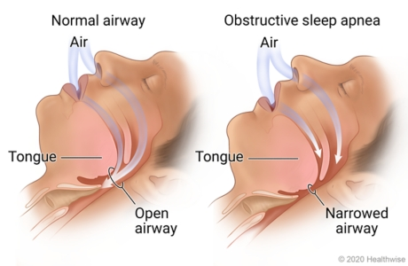 Normal airway, showing air flowing through open airway, compared to obstructive sleep apnea, showing air flow blocked by tongue in narrowed airway.