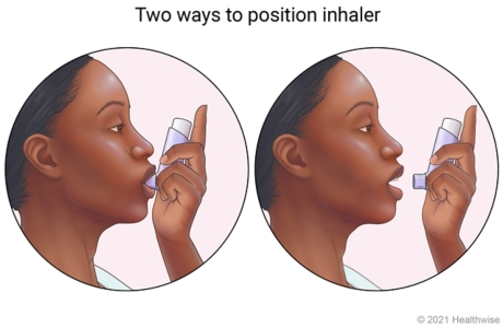 Two positions shown for using inhaler, one in mouth with lips closed around mouthpiece, and one placed 1 to 2 inches from open mouth.