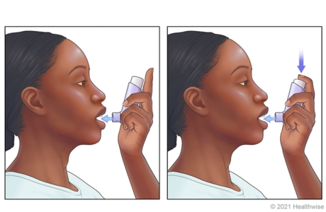 Person placing inhaler close to open mouth and pressing down on inhaler as they breathe in.