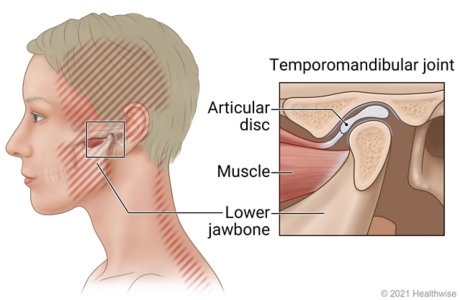 Areas of pain from TMD, with detail of TM joint showing articular disc, muscle, and lower jawbone.