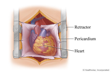 Retractor exposing the heart in the chest