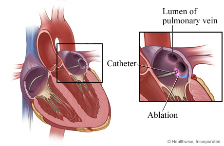 Heart tissue is destroyed (ablation)