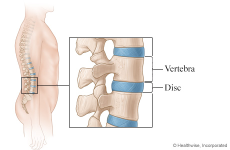 Picture of discs of the spine