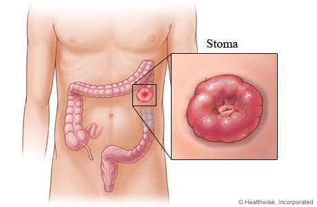A stoma created after colon surgery