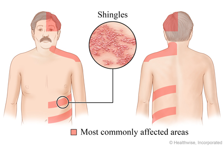 Close-up of shingles rash and where shingles usually appears: top half of the head, neck and shoulders, and the belly or back area