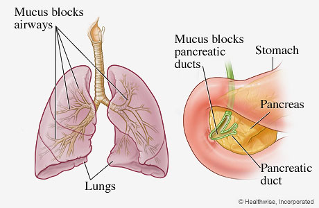 Organs most frequently affected by cystic fibrosis (lungs and pancreas)