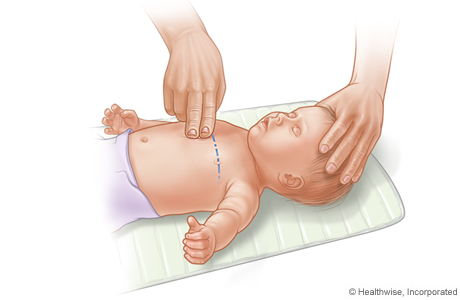 CPR on infant, showing placement of two fingers on breastbone