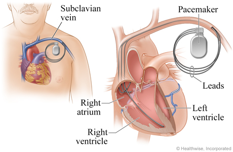 Location of pacemaker and how it connects to the heart.
