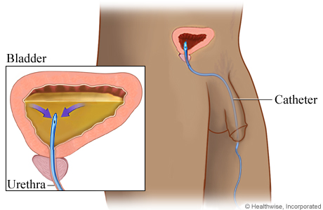 Picture of a catheter