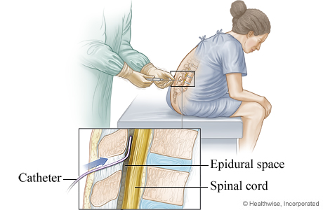 Placement of an epidural catheter for labor