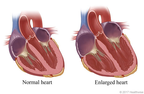 Normal heart and an enlarged (dilated) heart