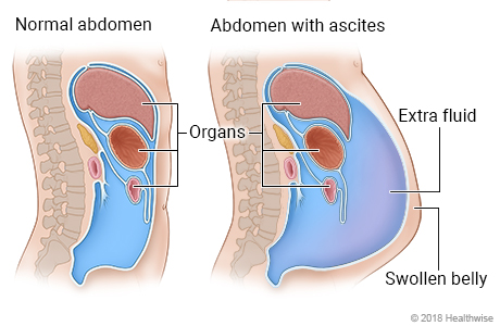 Cross-section of organs in abdomen, showing normal abdomen and abdomen with extra fluid (ascites)