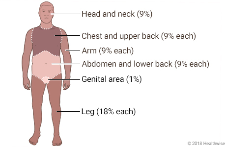 Body divided into areas showing percentages of surface area