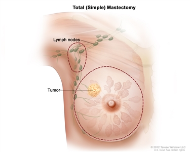 Total (simple) mastectomy; drawing shows removal of the breast and lymph nodes.