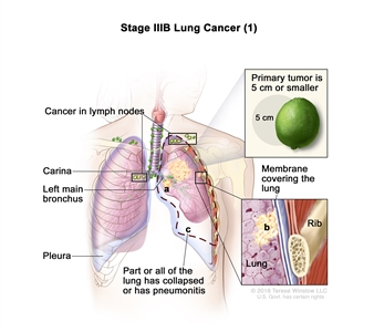 Stage IIIB lung cancer (1); drawing shows a primary tumor (5 cm or smaller) in the left lung and cancer in lymph nodes above the collarbone on the same side of the chest as the primary tumor and in lymph nodes on the opposite side of the chest as the primary tumor. Also shown is cancer that has spread to (a) the left main bronchus and (b) the membrane covering the lung. Also shown is (c) part or all of the lung has collapsed or has pneumonitis (inflammation). The carina, pleura, and a rib (inset) are also shown.
