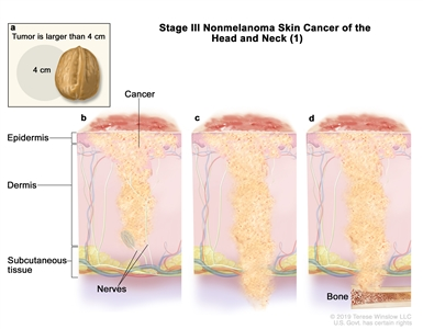 Stage III nonmelanoma skin cancer of the head and neck (1); drawing shows (a) an inset showing that the tumor is larger than 4 centimeters and that 4 centimeters is about the size of a walnut. Also shown is cancer spreading through the epidermis to (b) tissue covering the nerves below the dermis; (c) below the subcutaneous tissue; and (d) bone.