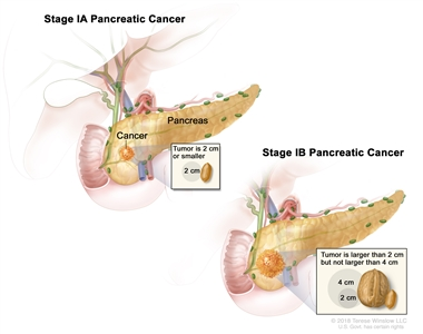 Stage I pancreatic cancer; drawing on the left shows stage IA pancreatic cancer. The cancer is in the pancreas and the tumor is 2 centimeters or smaller. An inset shows 2 centimeters is about the size of a peanut. The drawing on the right shows stage IB pancreatic cancer. The cancer is in the pancreas and the tumor is larger than 2 centimeters but not larger than 4 centimeters. An inset shows 2 centimeters is about the size of a peanut and 4 centimeters is about the size of a walnut.
