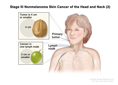 Stage III nonmelanoma skin cancer of the head and neck (2); drawing shows a primary tumor on the face and cancer in one lymph node on the same side of the body as the tumor. The top inset shows that the tumor is 4 centimeters or smaller and that 4 centimeters is about the size of a walnut. The bottom inset shows that the lymph node with cancer is 3 centimeters or smaller and that 3 centimeters is about the size of a grape.