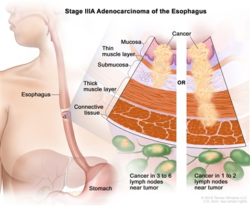 Stage IIIA adenocarcinoma of the esophagus; drawing shows the esophagus and stomach. A two-panel inset shows the layers of the esophagus wall: the mucosa layer, thin muscle layer, submucosa layer, thick muscle layer, and connective tissue layer. The left panel shows cancer in the mucosa layer, thin muscle layer, and submucosa layer and in 3 lymph nodes near the tumor. The right panel shows cancer in the mucosa layer, thin muscle layer, submucosa layer, and thick muscle layer and in 1 lymph node near the tumor.