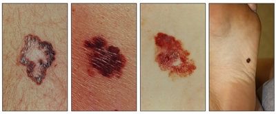 Photographs showing a brown lesion with a large and irregular border on the skin (panel 1); large, asymmetrical, red and brown lesions on the skin (panels 2 and 3); and an asymmetrical, brown lesion on the skin on the bottom of the foot (panel 4).