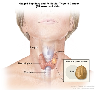 Stage I papillary and follicular thyroid cancer in patients 55 years and older; drawing shows cancer in the thyroid gland and the tumor is 4 centimeters or smaller. An inset shows 4 centimeters is about the size of a walnut. Also shown are the larynx and trachea.