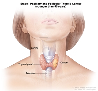Stage I papillary and follicular thyroid cancer in patients younger than 55 years; drawing shows cancer in the thyroid gland. Also shown are the larynx and trachea.