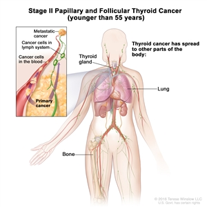 Stage II papillary and follicular thyroid cancer in patients younger than 55 years; drawing shows other parts of the body where thyroid cancer may spread, including the lung and bone. An inset shows cancer cells spreading from the thyroid gland, through the blood and lymph system, to another part of the body where metastatic cancer has formed.