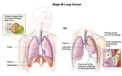 Two-panel drawing of stage IB lung cancer; the panel on the left shows a tumor (larger than 3 cm but not larger than 4 cm) in the right lung. Also shown are the pleura and diaphragm. The panel on the right shows a primary tumor (4 cm or smaller) in the left lung and cancer in (a) the left main bronchus and (b) the inner membrane covering the lung (inset). Also shown is (c) part or all of the lung has collapsed or has pneumonitis (inflammation). The carina and a rib (inset) are also shown.
