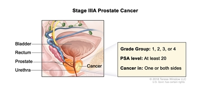 Stage IIIA prostate cancer; drawing shows cancer in one side of the prostate. The PSA level is at least 20 and the Grade Group is 1, 2, 3, or 4. Also shown are the bladder, rectum, and urethra.