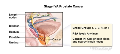 Stage IVA prostate cancer; drawing shows cancer in one side of the prostate and in nearby lymph nodes. The PSA can be any level and the Grade Group is 1 ,2, 3, 4, or 5. Also shown are the bladder, rectum, and urethra.