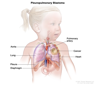 Drawing showing areas where pleuropulmonary blastoma may form, including the aorta, pulmonary artery, lung, heart, pleura, and diaphragm. Also shown is cancer in the left lung.