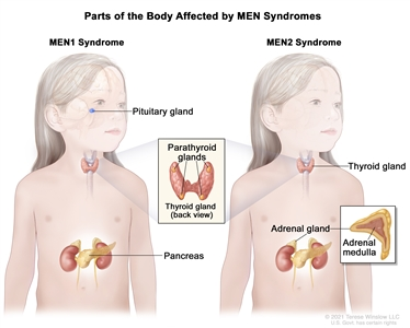 Parts of the body affected by multiple endocrine neoplasia (MEN) syndromes; the drawing on the left shows parts of the body affected by MEN1 syndrome, including the pituitary gland, parathyroid glands, and pancreas. An inset shows the back view of the thyroid gland and the four pea-sized parathyroid glands. The drawing on the right shows parts of the body affected by MEN2 syndrome, including the thyroid gland, parathyroid glands, and adrenal gland. An inset shows the adrenal medulla (inner part) of the adrenal gland.