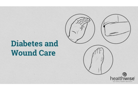 Diabetes and Wound Care