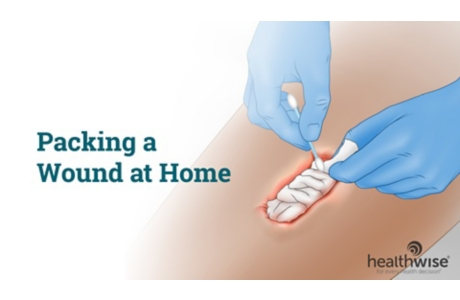 Packing a Wound at Home