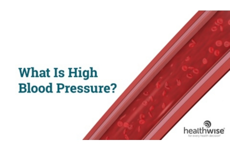 What Is High Blood Pressure?