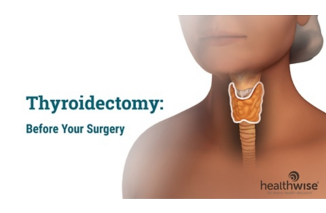 Thyroidectomy: Before Surgery